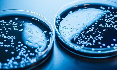 Legionellabacteriën op een petrischaaltje